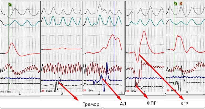 Напруга м'язів при проходження перевірки на детекторі брехні